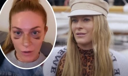 RHONY Breakout Star Leah McSweeney Gets Candid With Followers About Her Nose Work!